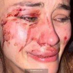 Top model Daria Kyryliuk Çeşme'de saldırıya uğradı