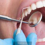 Dişlerde oluşan aşınmaların sebepleri neler diş fırçalama yöntemine dikkat!