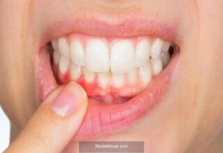 Pandemi dönemi eksik kalan diş tedavileri genel sağlığı nasıl etkiliyor aman dikkat!